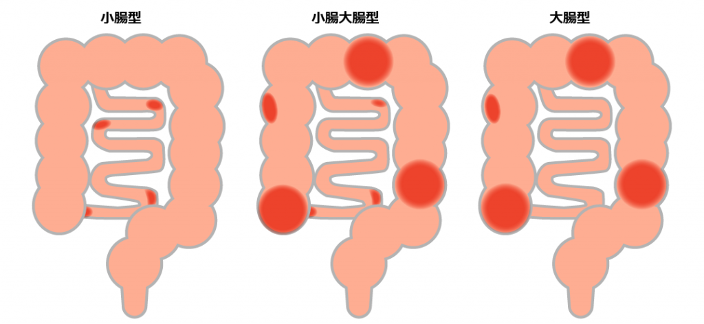クローン病の病型分類